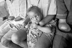 [Sierra Leone] Freetown, Sierra Leone: This two-year-old girl lost her right arm when her grandmother was shot and killed by Revolutionary United Front rebels. She was being carried on her grandmother's back and was injured by the same bullet that killed