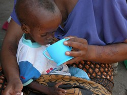[Malawi] A child recovering from Kwashikor in a Nutritional Rehabilitation Unit in the Nsanje district. [Date picture taken: 2005/10/06]