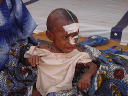 [Niger] Malnourished child in the MSF supplementary feeding centre in Keita, Tahoua region, Niger, June 2005.