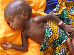 [Mali] Abdoulaye Momina is 20 months old child / baby and severely malnourished. Pictured in August 2005 at Gao District Hospital, Gao, Eastern Mali. He has been receiving specialist treament for 1 week and is starting to recover weight. He is from a poor