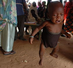A malnourished child at a Médecins Sans Frontières feeding centre, 12 August 2005, Maradi, Niger. The centre is filled with hundreds of children, many of whom were in a bad condition than they arrived. The children here are fortunate as they are recover