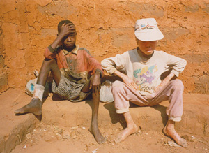 [Angola] Albino child with friend in Kuito.