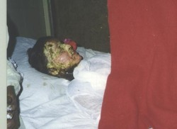 [Pakistan] Acid burn victim. [Date picture taken: 04/20/2006]