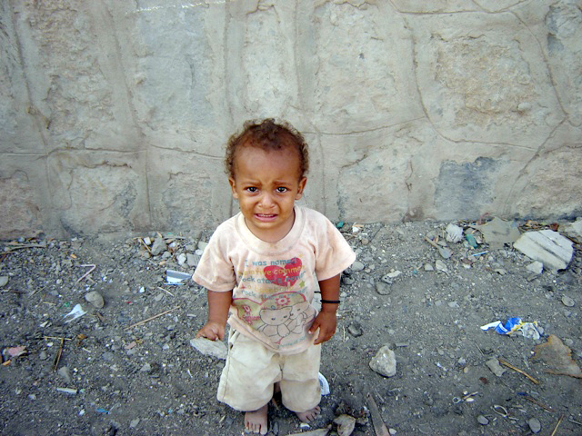 A Somali refugee child suffers the miserable conditions of the al-Basateen area of Aden province, Yemen.