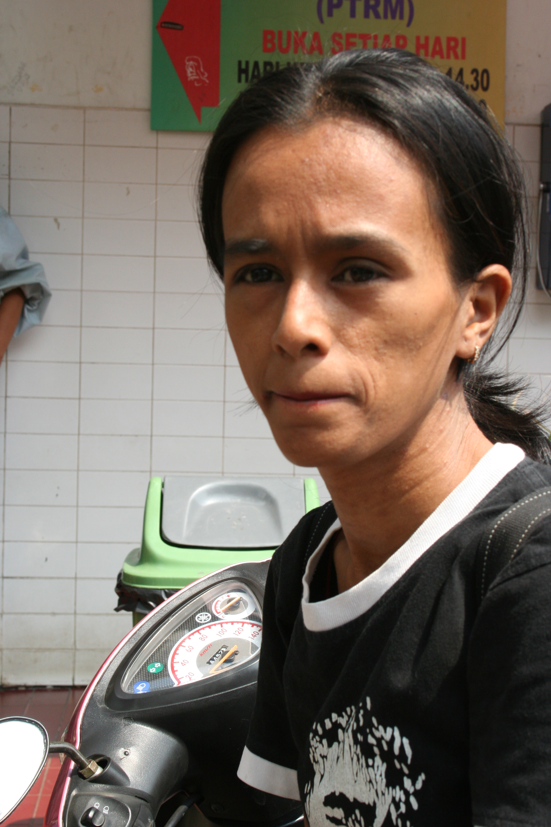 A female former heroin addict on a methadone programme in Jakarta, Indonesia.