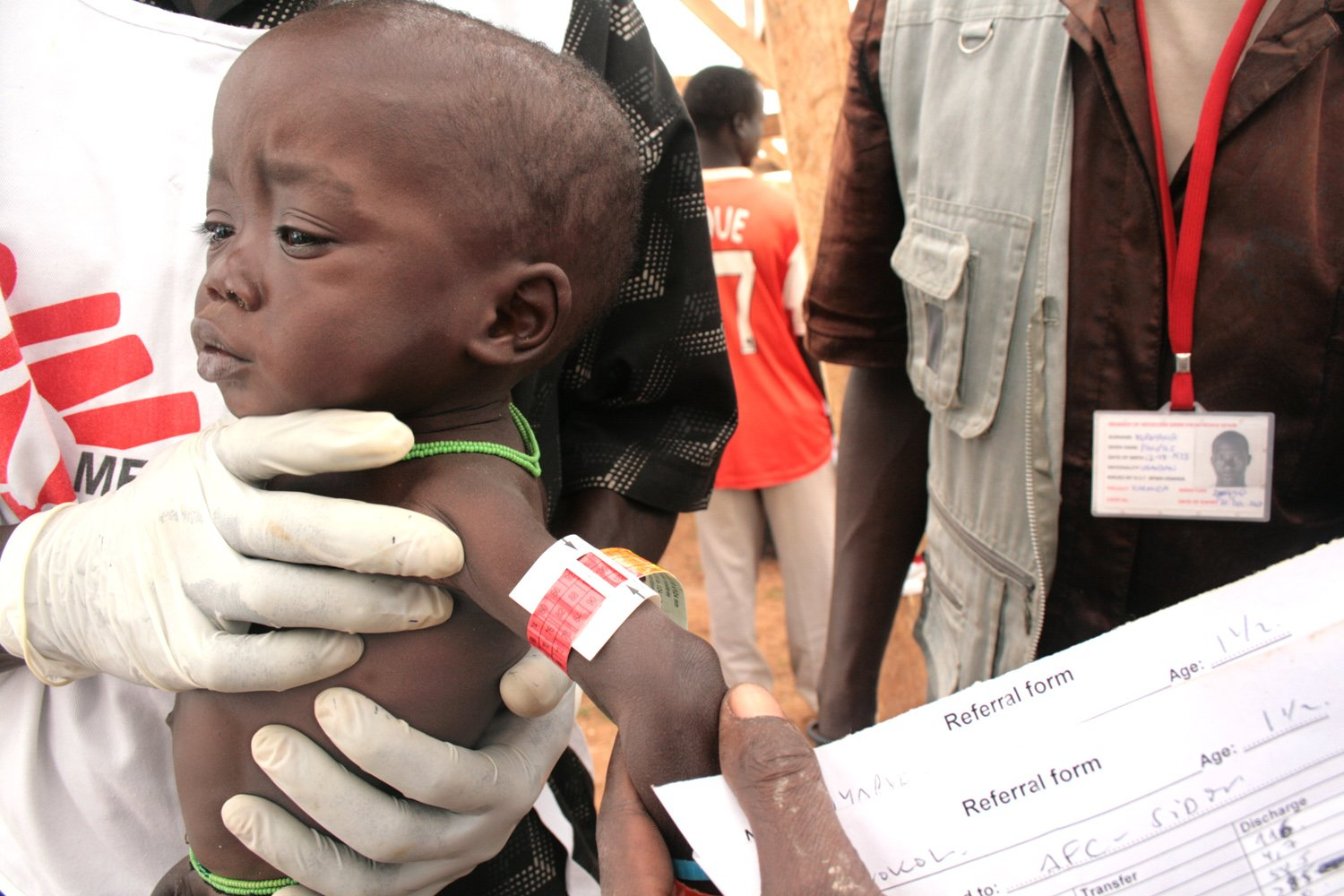 A health worker uses the strip on the child's upper hand to determine the level of malnutrition. In this case, the child was found to be malnourished.