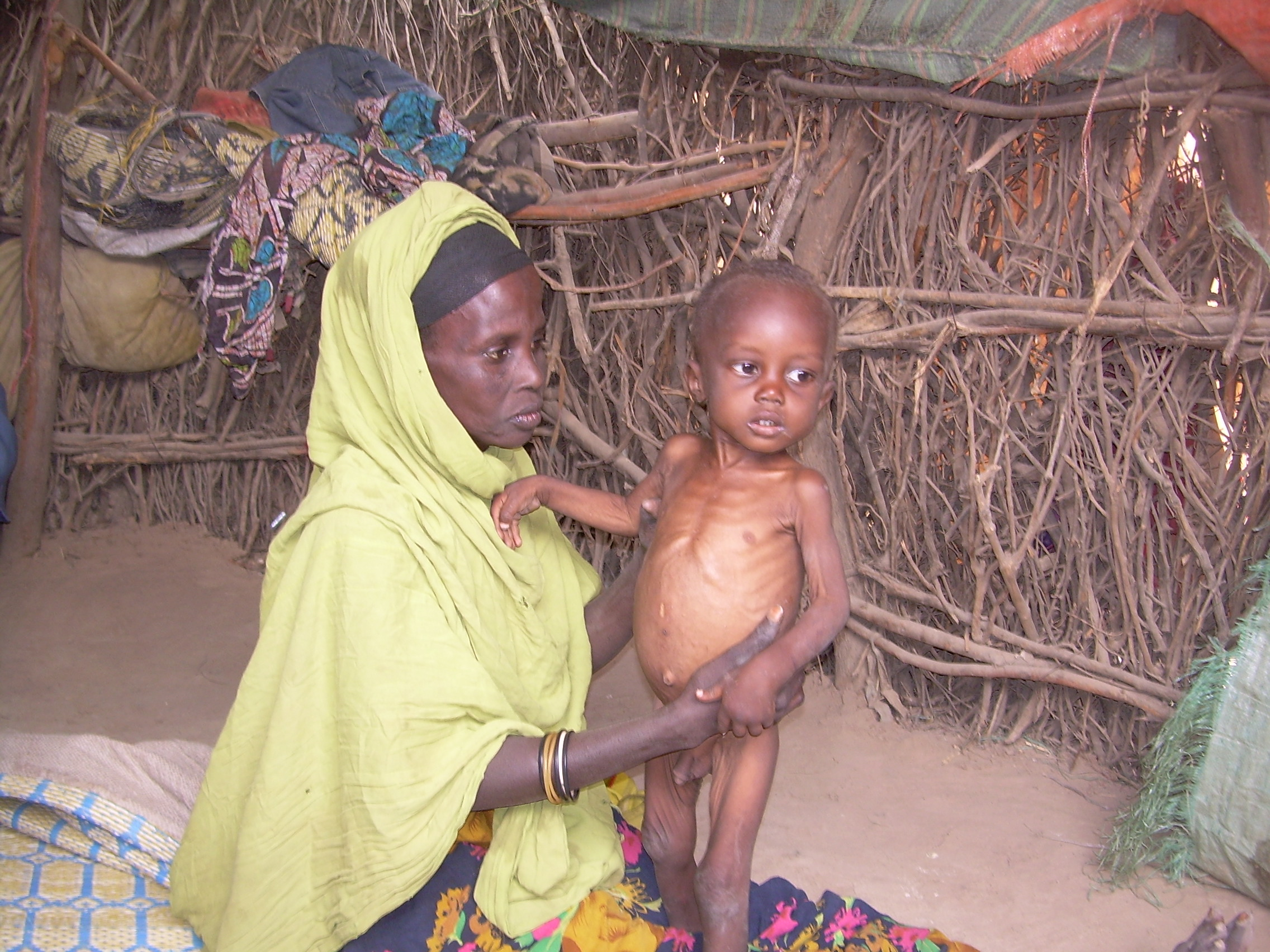 A mother and her malnourished child in Beletweyne, Hiiraan region of central Somalia.