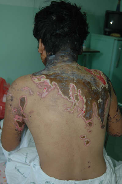 A Thai woman whose husband doused her with acid when she didn't allow him to visit his mistress.