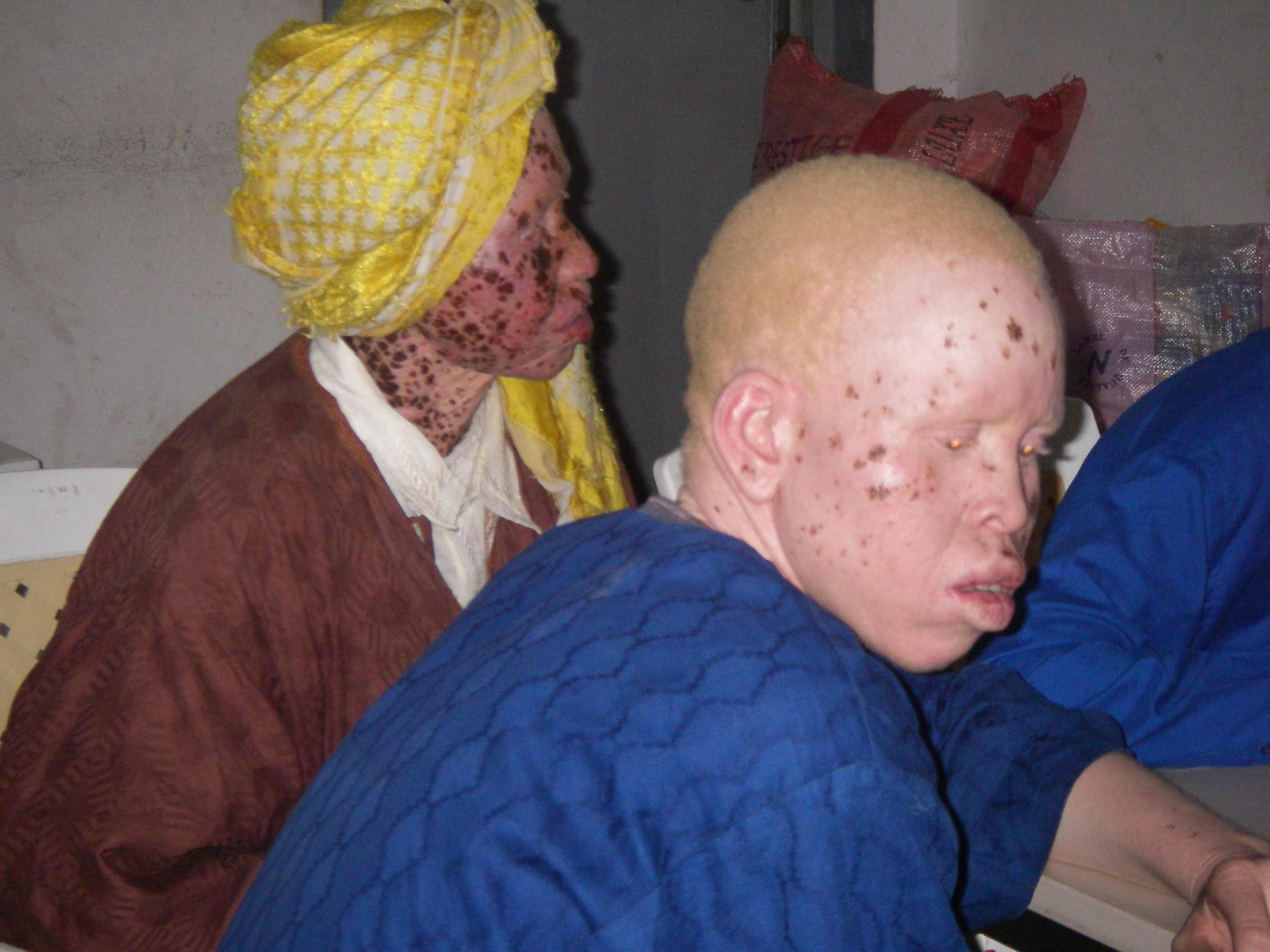 The Senegalese Association of Albinos at one of their regular meetings  in Pikine, on the outskirts of Dakar, November 2008