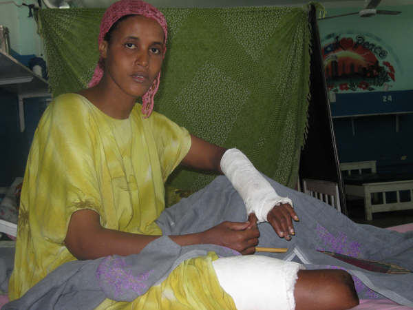 Faliz Ali, a Mogadishu resident injured in the violence