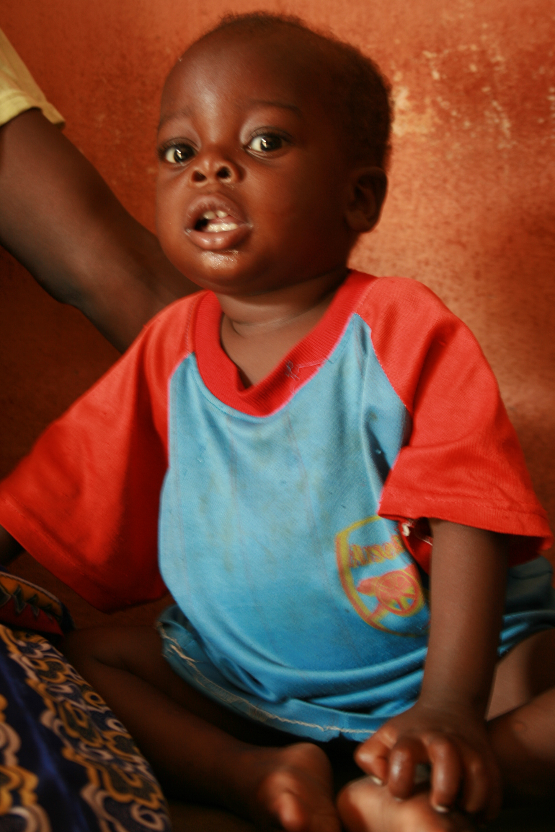 Malnourished two-year old child in Lotougou village in northern Togo waits for his weigh-in