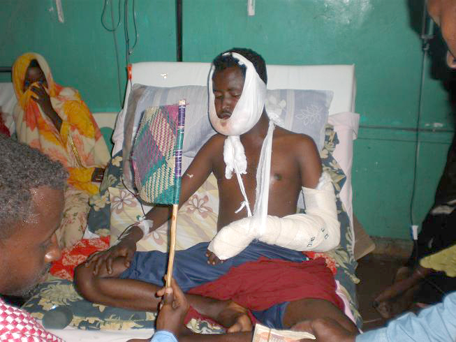 A young man injured in the fighting in Mogadishu recovering at Medina hospital