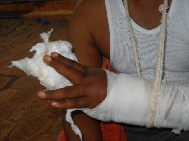 This man in the Guinea capital Conakry said his hand was nearly severed when a soldier hacked it with a knife during violent repression of demonstrators on 28 September 2009