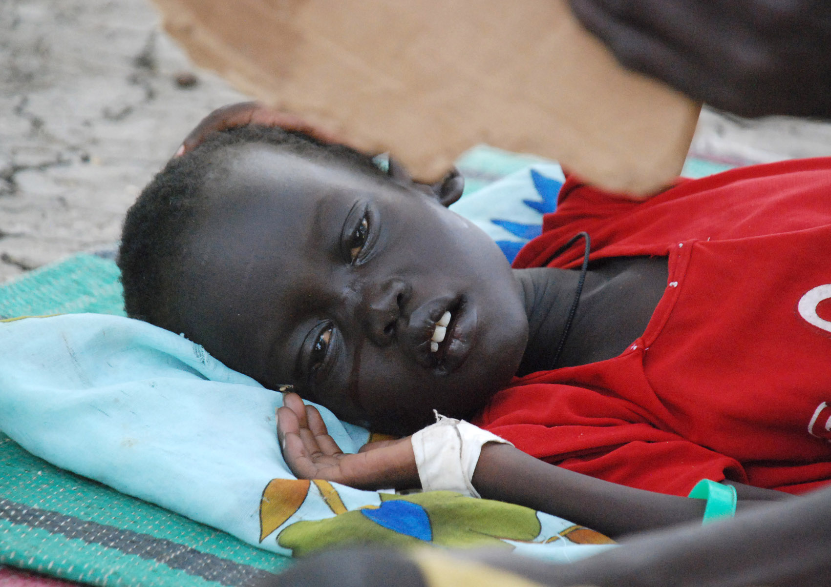 A southern Sudanese child being treated for kala azar disease rests in the grounds of Malakal hospital, Upper Nile state