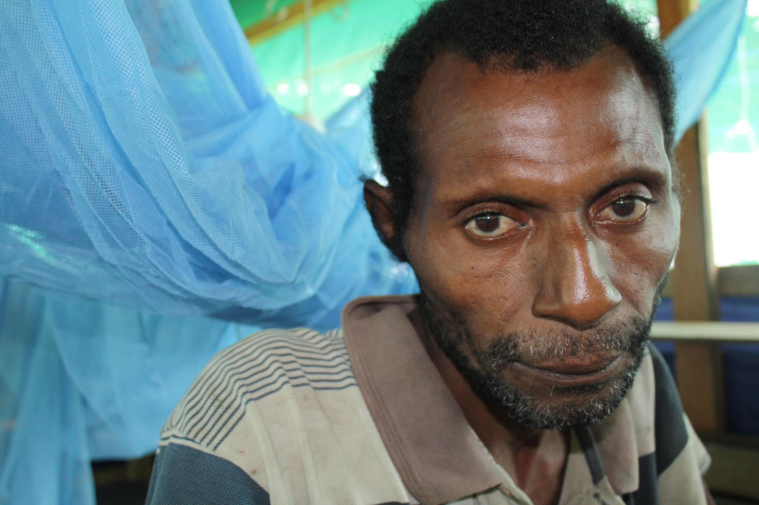 Willie Kagoe, 47, of Banara Village, 160 km outside Madang, northern PNG is the latest victim of cholera