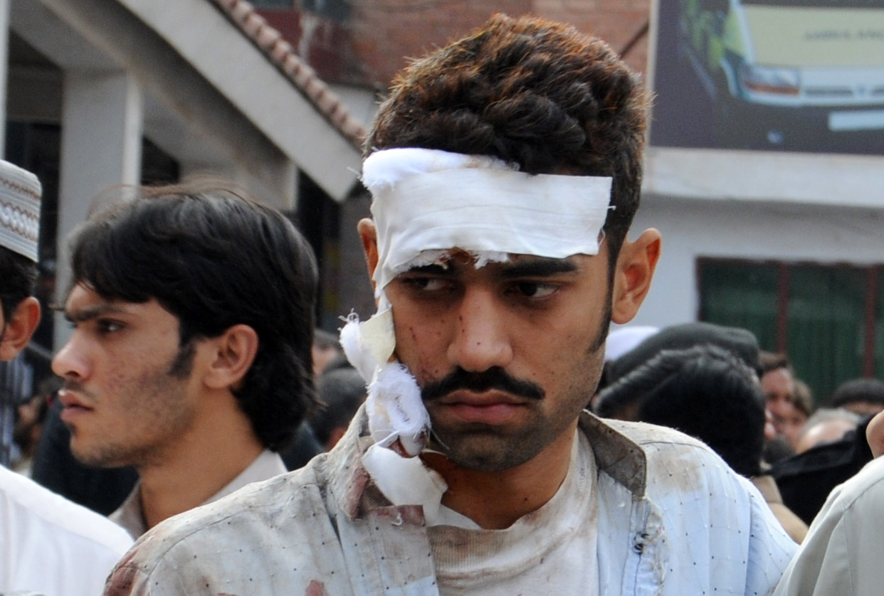 The more fortunate escape bomb blasts in Pakistan with relatively minor injuries