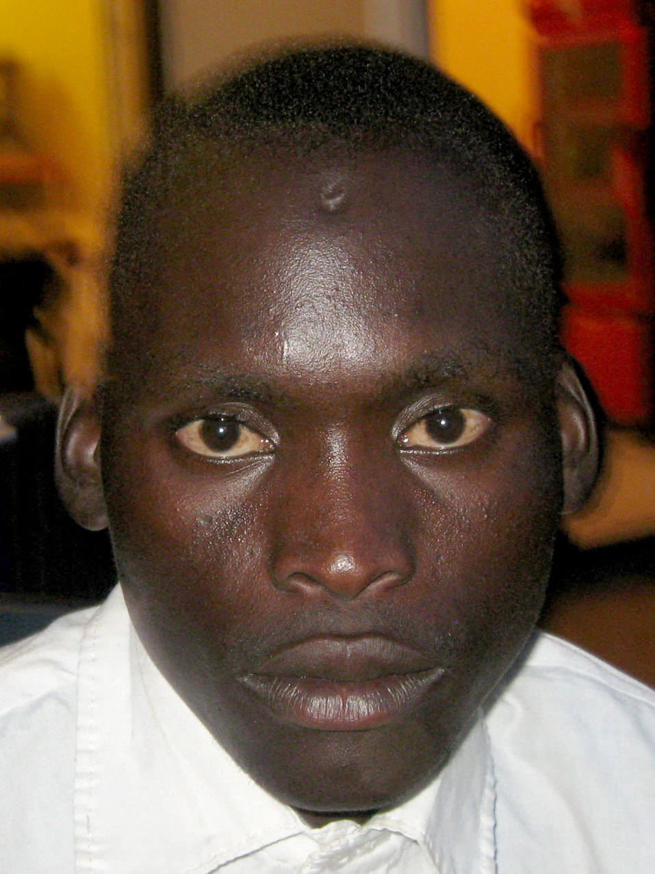 Justine Obonyo, with an obvious depression on his forehead where a bullet has been lodged for the last six years