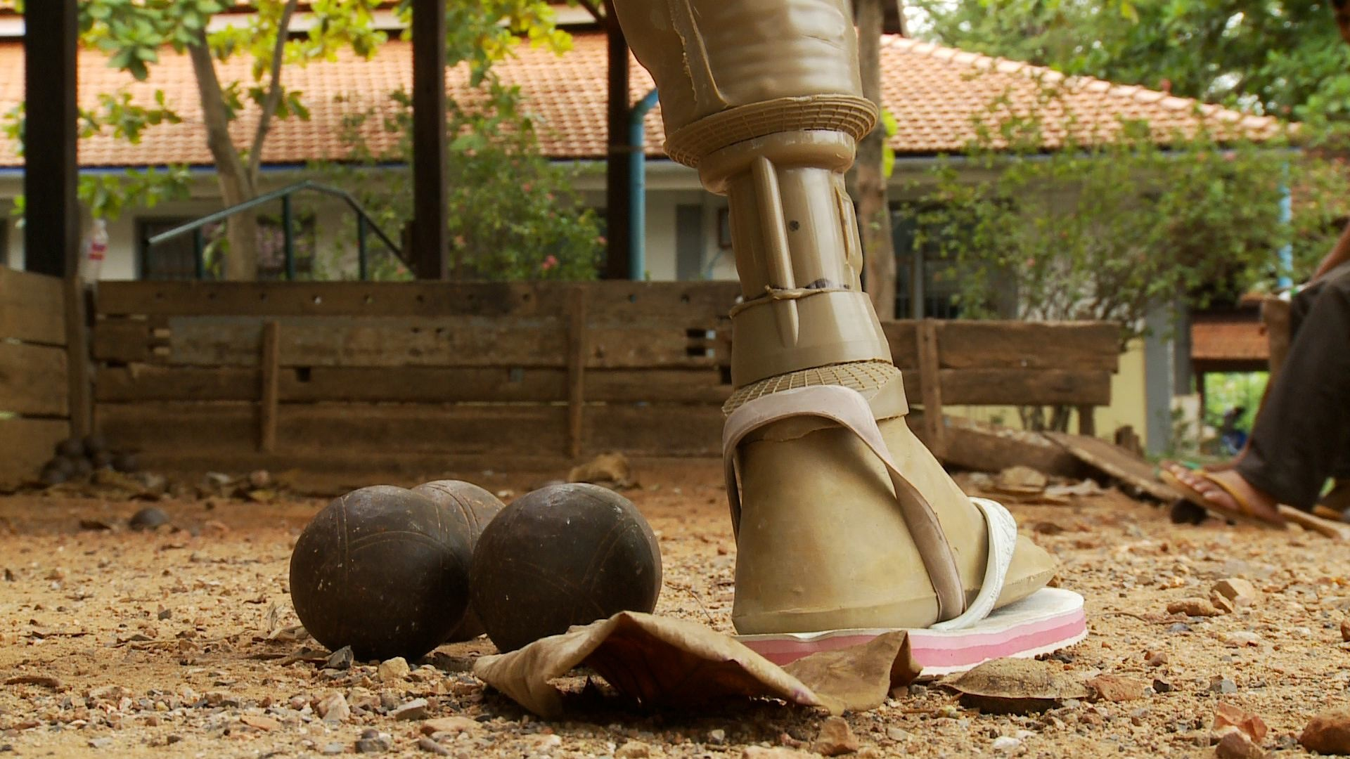 A prosthesis put on one of Cambodia's landmine victims