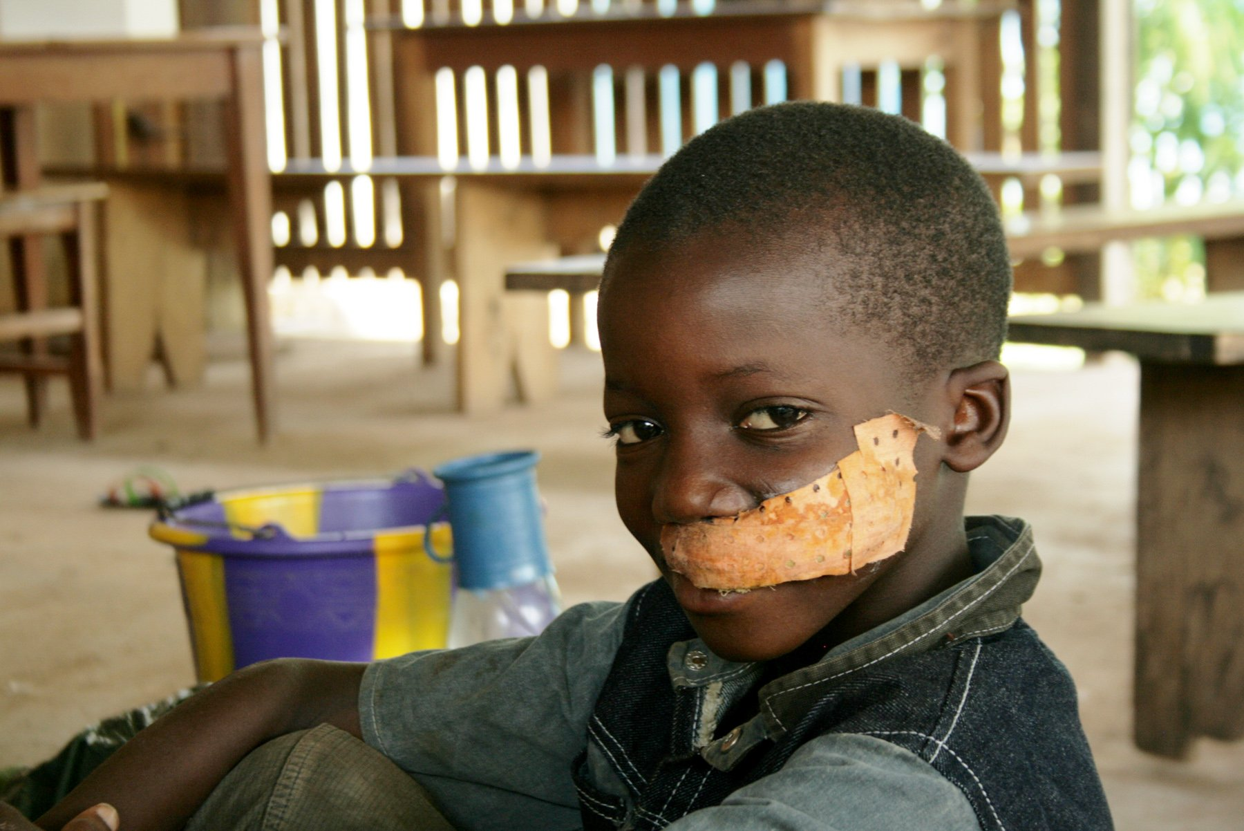 This boy was shot in the face when armed men attacked a site where displaced families had sought refuge, western Côte d'Ivoire. April 2011