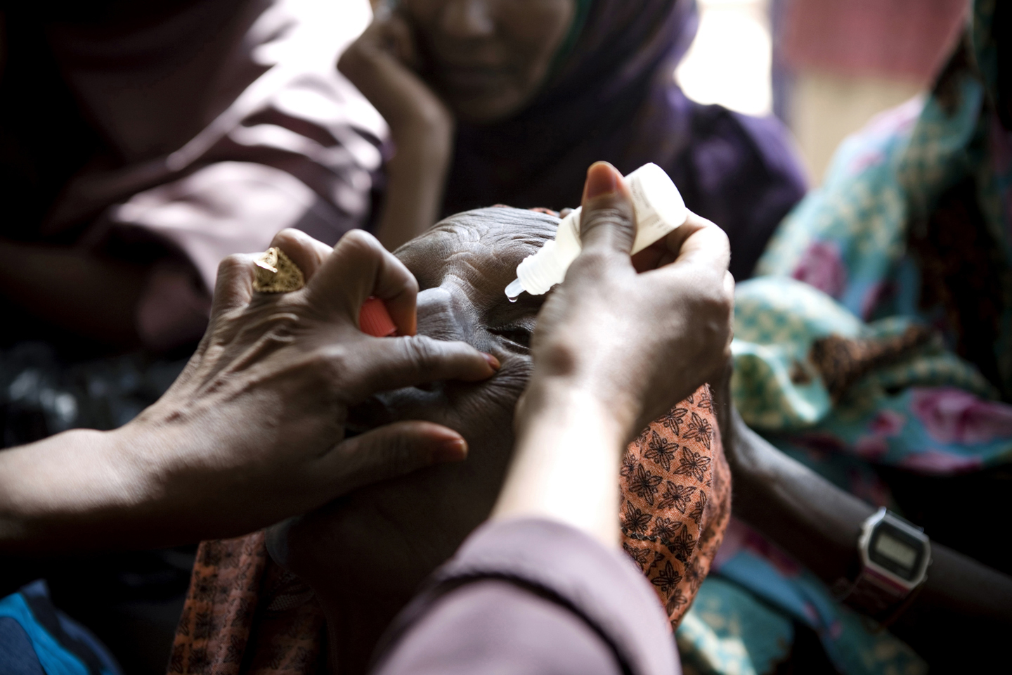 A nurse puts eye drops in a patient's eyes prior to the biometry test that will conclude what kind of artificial lens will suit the person during an eye surgery camp at the MSF hospital in Galcayo South in Puntland, Somalia on March 22, 2011. This is the