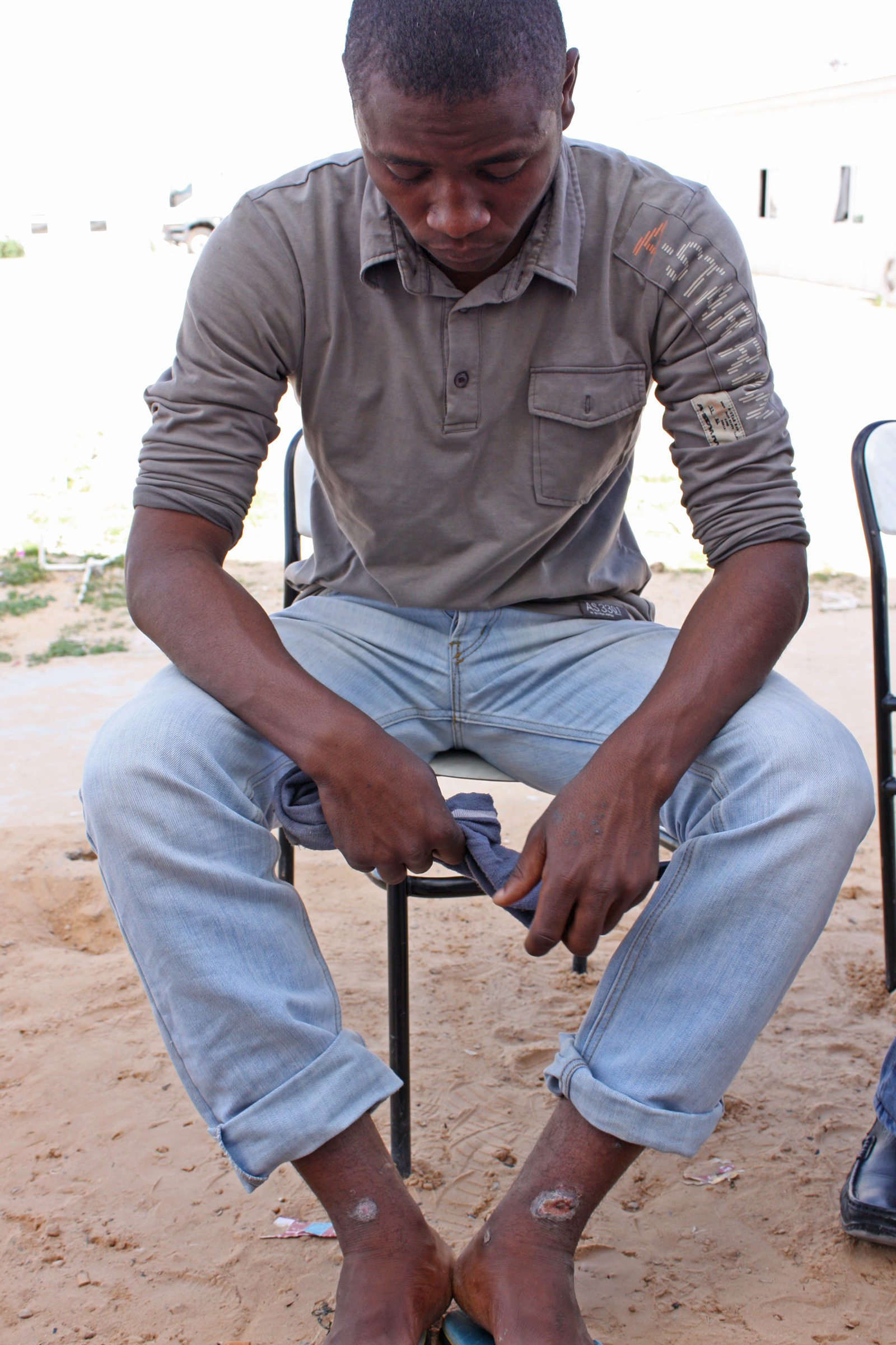 Suheil Mohammed Sa'ad Abu Sharide, 22, of Tawergha, shows the scars on his ankles from metal shackles he was forced to wear during detention by Misratan rebels after the Libyan civil war of 2011. (Airport Road / Turkish Compound site in Tripoli for displa