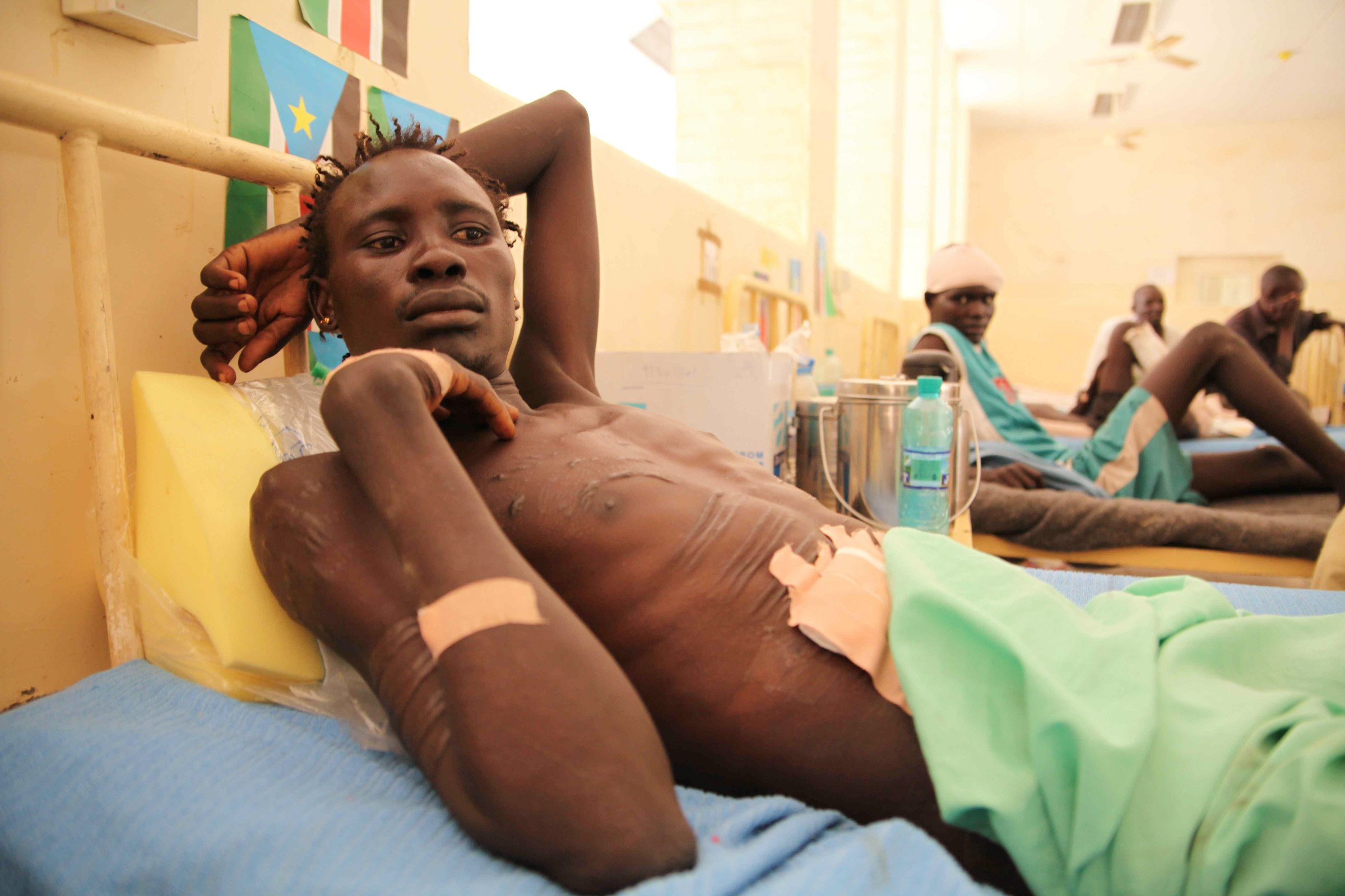 Lomouro Koko, recovering from a gunshot wound that ripped through his abdomen after being shot in Lanyiris, his village in Pibor county, when a tribal militia of up to 8000 armed Lou Nuer youths advanced on Pibor town to attack the Murle