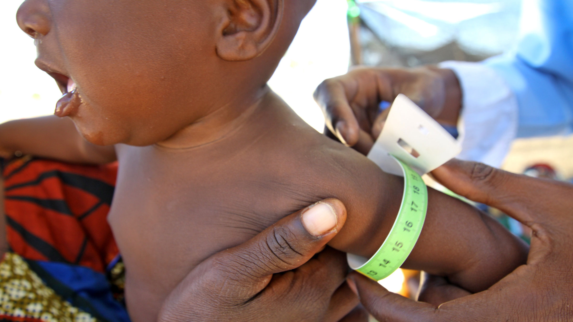 A young child being measured for signs of malnutrition in World Food Programme run therapeutic feeding center near Maradai, Niger