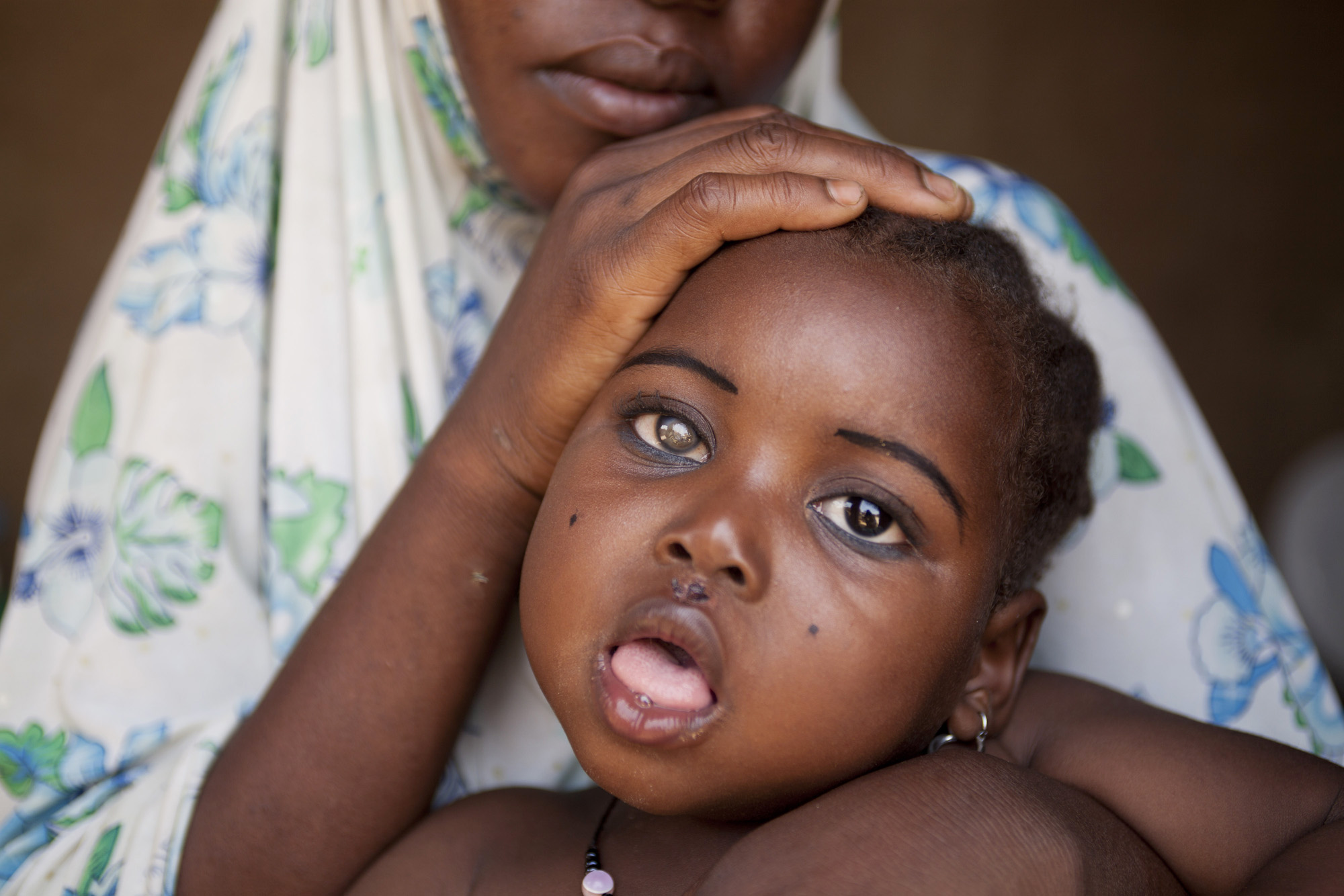 A little girl in Zamfara State is living with the long term effects of lead poisoning including blindness and convulsions. Thousands of children in Zamfara have been lead-poisoned as a result of unsafe artisanal mining practices over the past two years