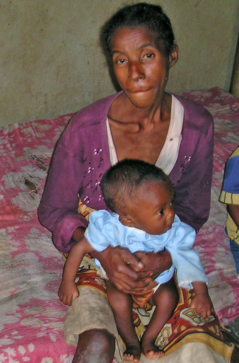 Edwige Solo and her seven month old child at a nutritional centre in the east coast Madagascan town of Brickaville