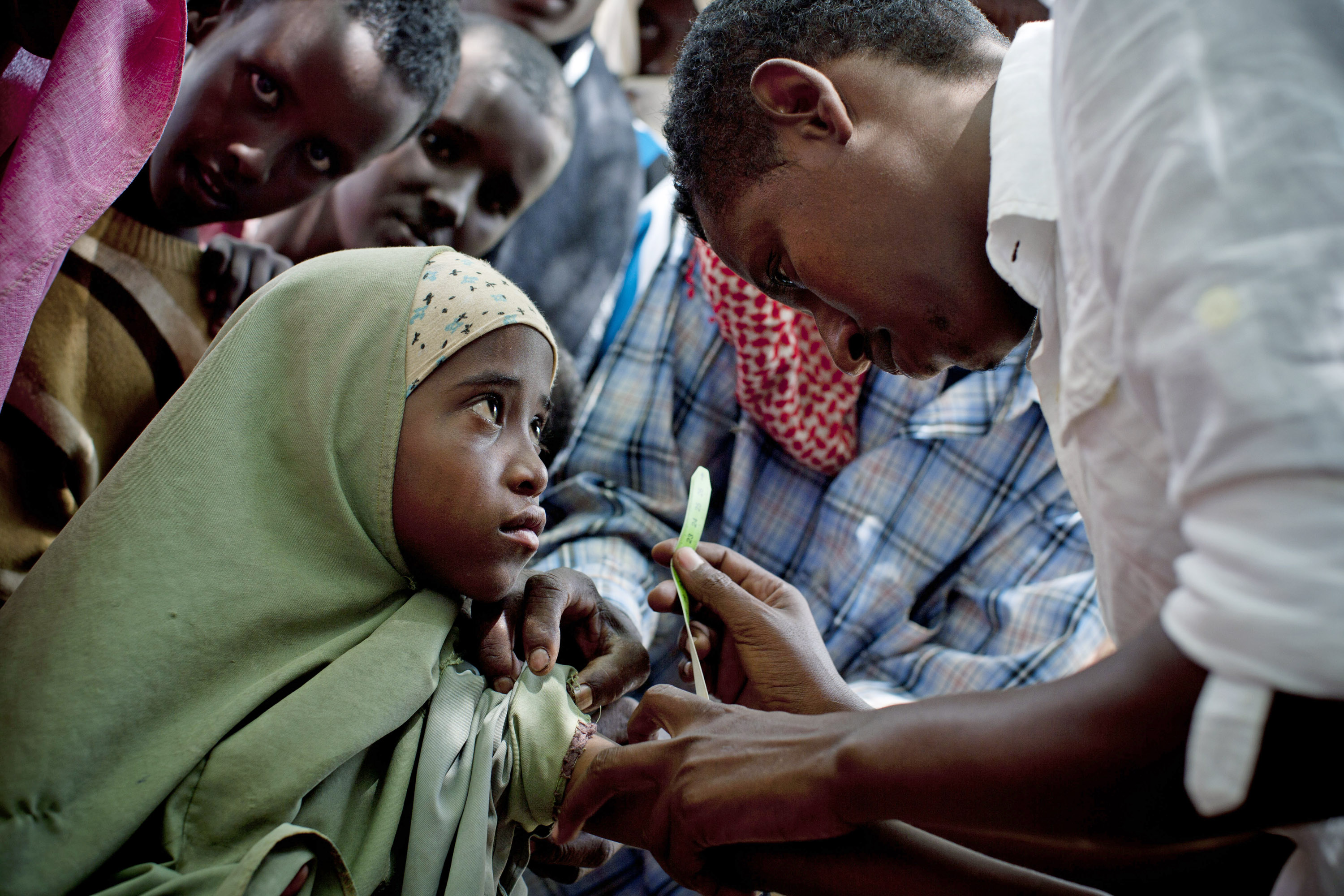 A girl has her arm measured as part of a weekly nutritional assessment organized by DIAL, a local NGO and UNICEF partner, in Ras Kamboni, Somalia (July 2012)