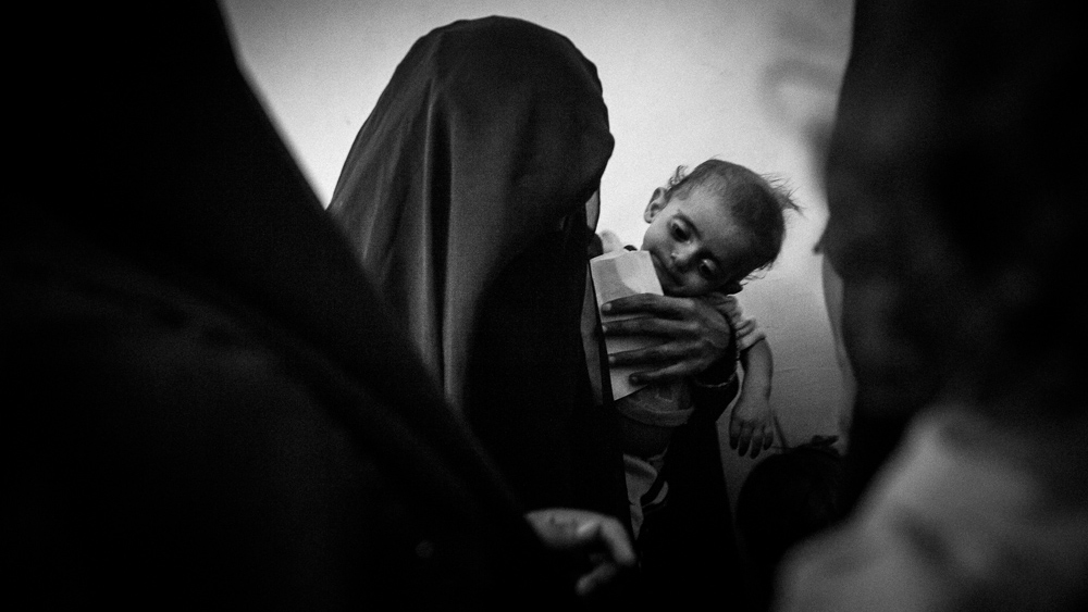 Mother and child wait for attendance at a hospital that assists malnourished children in the impoverished area of Bayt al-Faqih, Yemen