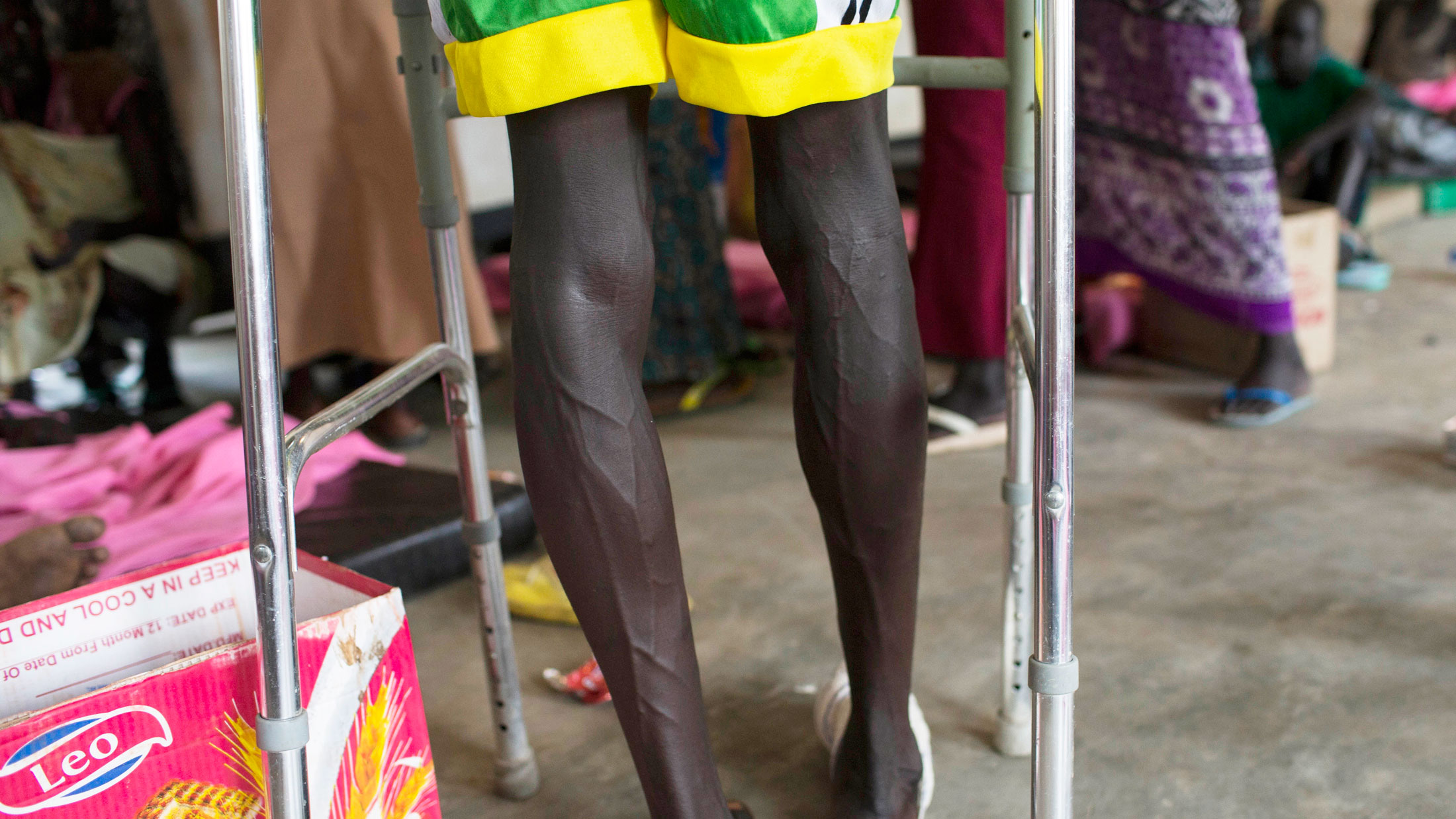 A Lou Nuer youth uses a walking aid to limp through a hospital ward in Bor hospital, Bor town, Jonglei State, South Sudan, Monday, July 15, 2103. Fierce clashes between rival ethnic groups have again erupted in eastern Jonglei state, causing 144 wounded t
