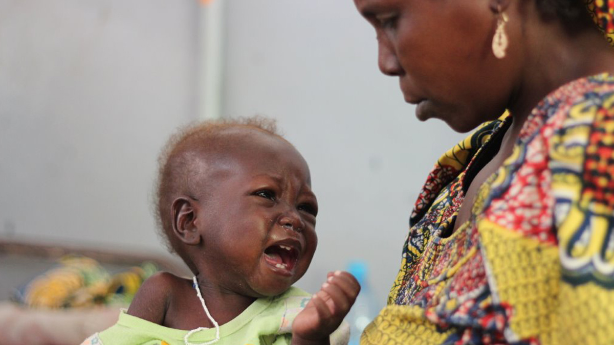 A mother watches her baby at a hospital in Cameroon's Far North Region. Some 58,000 children under five have been afflicted by severe malnutrition in the Far North and North regions of Cameroon this year