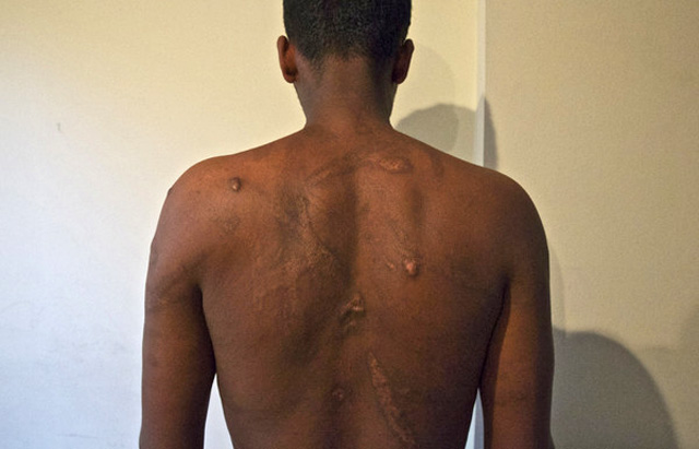Human Rights Watch interviewed dozens of Eritrean refugees who described their torture at the hands of traffickers in Egypt's Sinai Peninsula