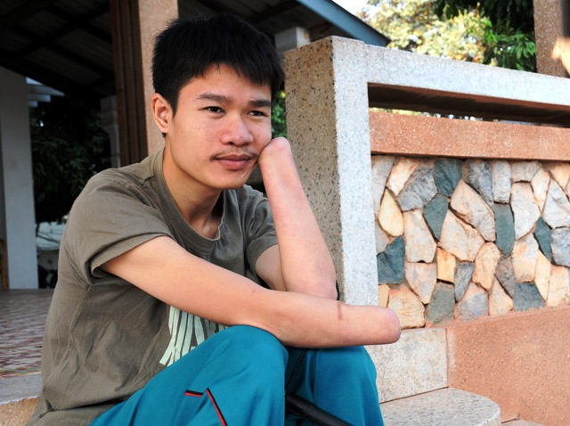 Phongsavath Manithong, 22, who was blinded and lost both his hands to a cluster bomb, is raising awareness for UXO victims. Laos remains the most heavily bombed country in the world, many of which failed to detonate,  with around 25 percent of its village