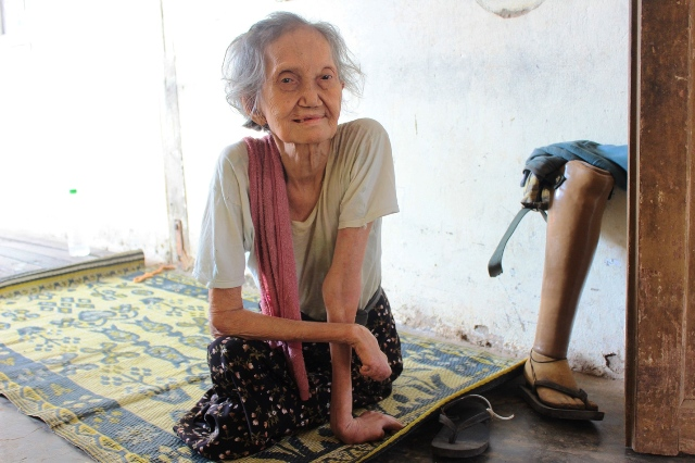 A woman with leprosy at a shelter in Mayan Chaung , northeast of Yangon in Hlegu township