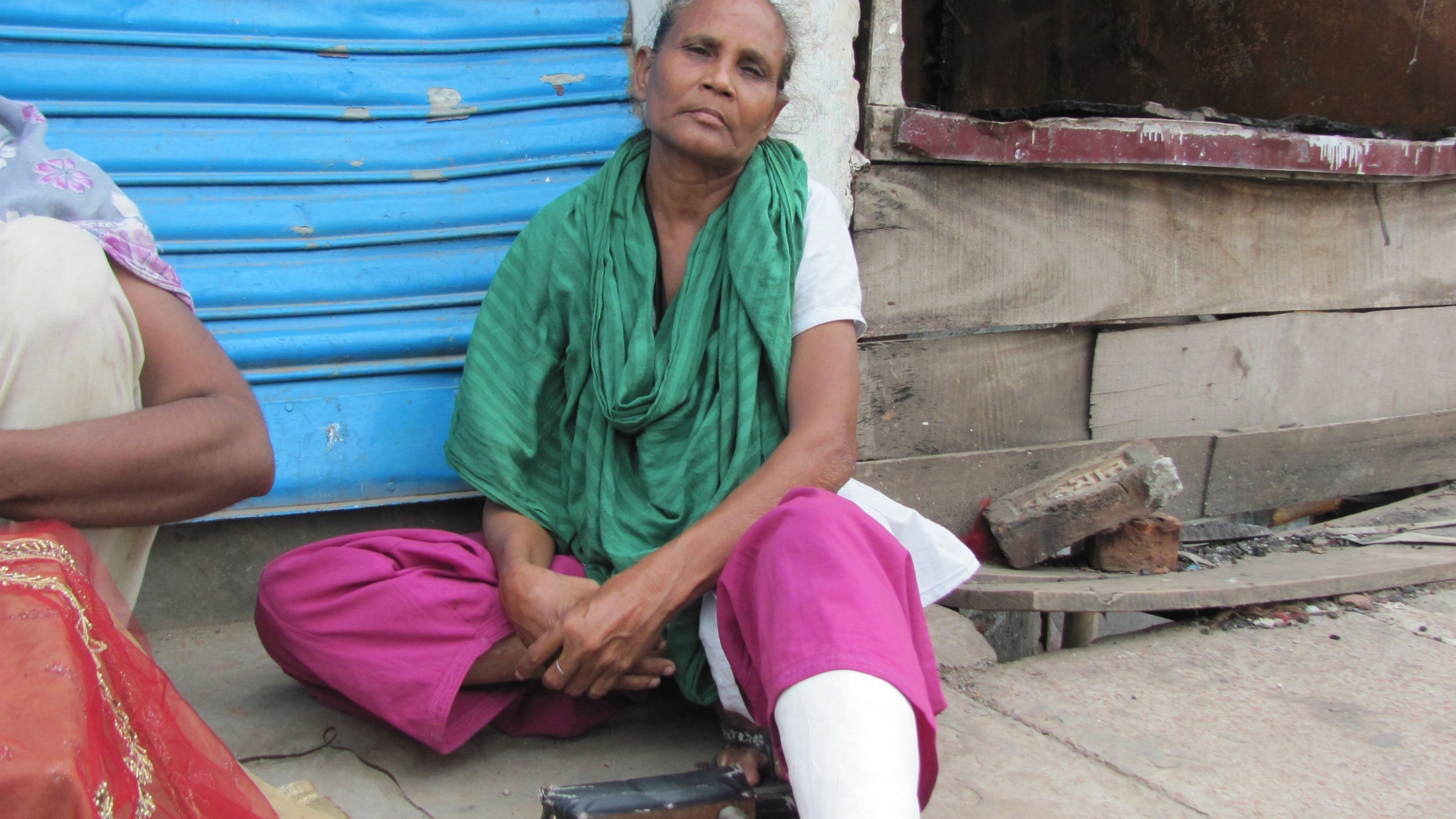 Anwari Begum, 50, received injury allegedly by police baton. The photo was taken on July 14, one month after clashes between Bihari residents and Bengali that burned several houses and left 10 dead.