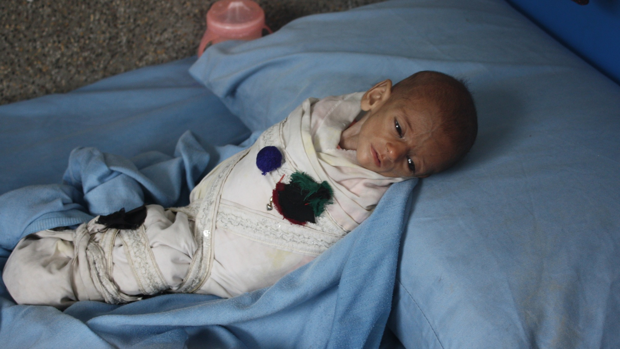 A severely malnourished child in the Afghan city of Jalalabad, east of the capital Kabul. Afghanistan has some of the highest rates of malnutrition in Asia.