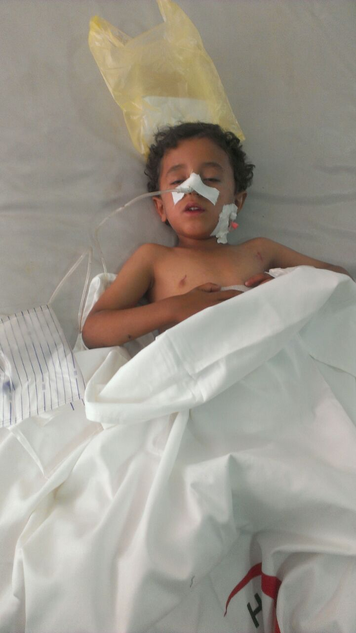 A young boy injured in an explosion in Sanaa, Yemen, after a Saudi airstrike hit a weapons store in the city on Monday 11 May 2015