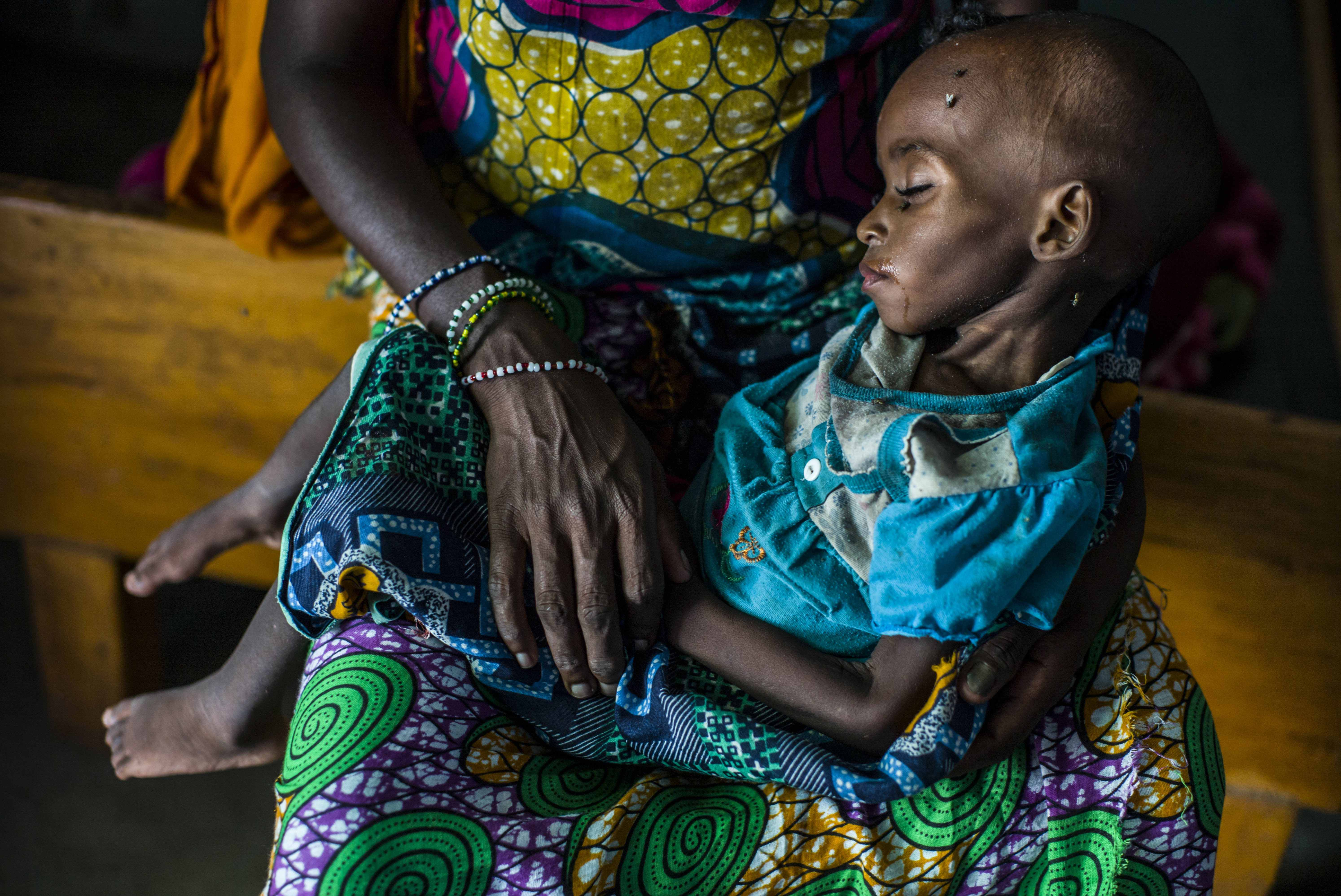 Eighteen-month-old Aishatou is treated for acute malnutrition at Gore hospital in Chad. Her mother, Fatouma, arrived with her at Dosseye refugee camp two weeks earlier, after walking for a month in the bush to escape violence in the Central African Republ