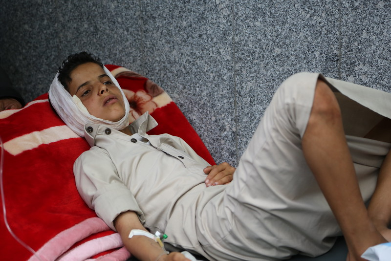 "Abdessalam, 15 years old, was wounded in the head and abdomen by anti-aircraft bullets in Sana'a. ""I was in the street with two kids and my elder brother when the antiaircraft bullets fell back. We didn't feel it until it came besides us and exploded"