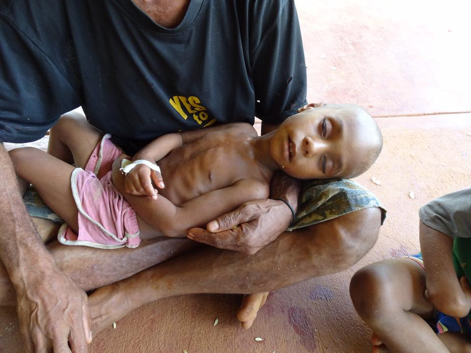 A malnourished child in January 2016 in Mougulu, Papua New Guinea, where crops were killed by drought and frosts linked to El Nino