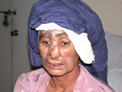 [Pakistan] This woman was disfigured by her husband for arguing with him.