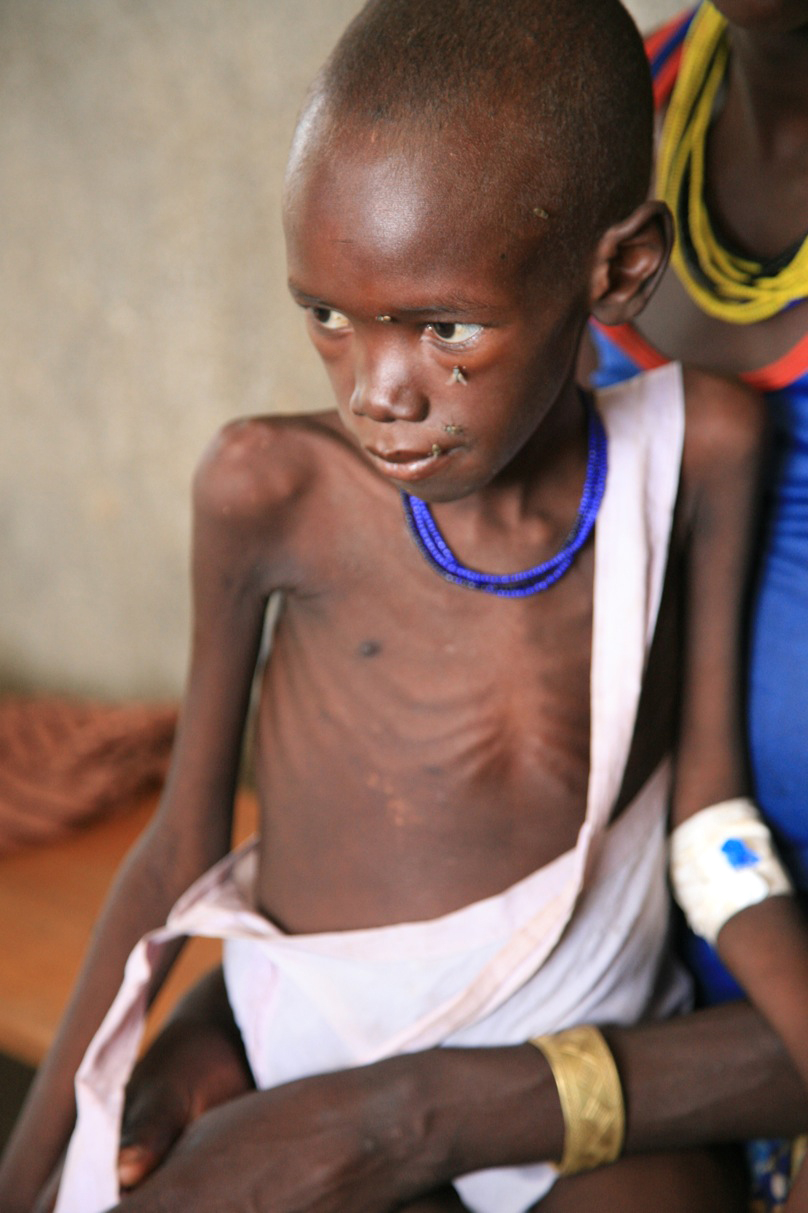 A cycle of droughts and floods combined with a world food crisis that affects even remote places like Karamoja, near the border of Kenya and Sudan in northeast Uganda means there just isn't enough to eat. Children and the elderly are the first to fall vic