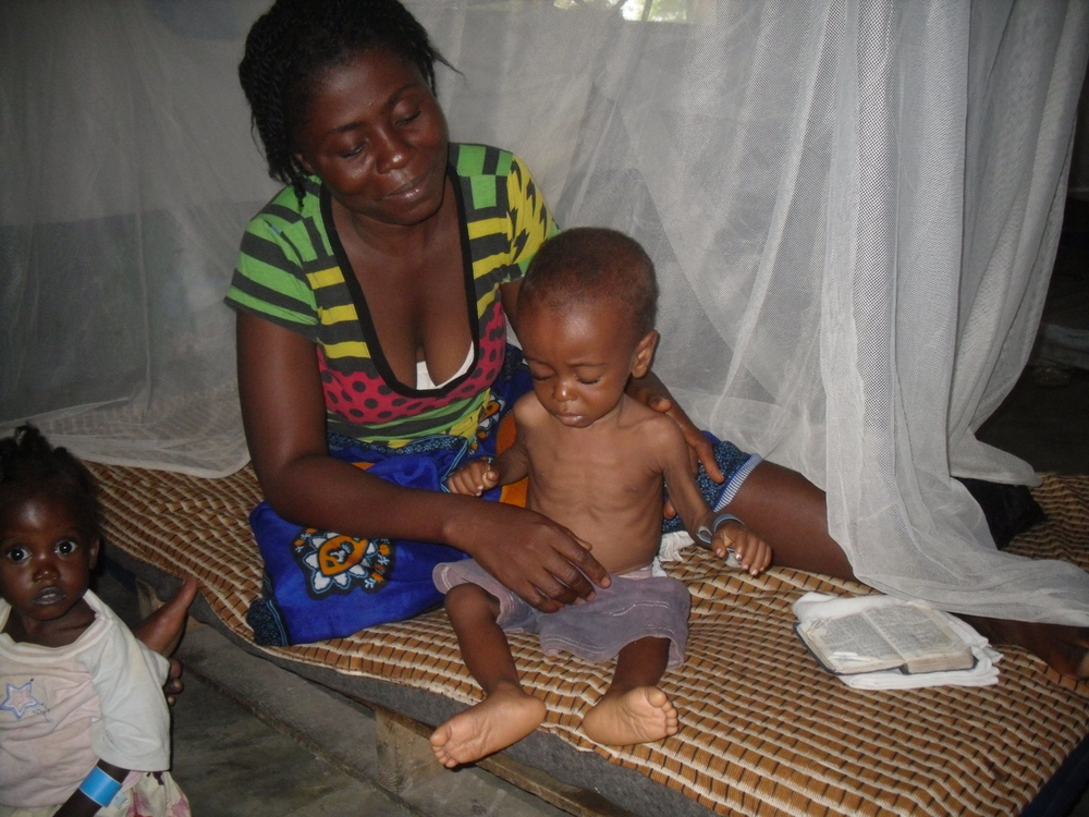 Malnourished child in Monrovia, March 2009