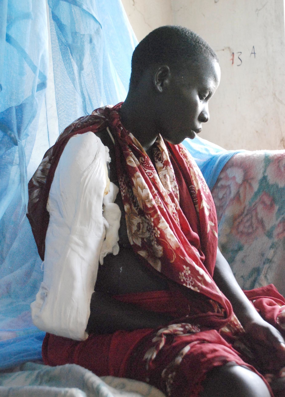 A southern Sudanese woman recovers in Akobo hospital from gunshot wound to her arm and a spear thrust in her back in this 7th August photograph. The woman, who is pregnant, survived a massacre at her fishing village in which 185 people were killed