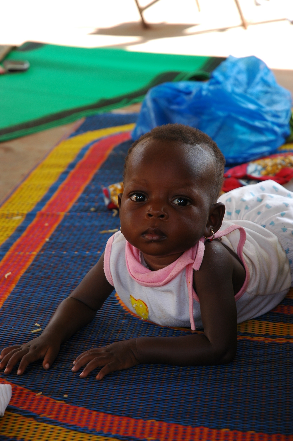 Baby treated for malnutrition at Ouahigouya regional hospital in northwestern Burkina Faso