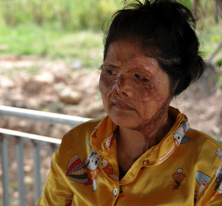 Keo Srey Vy, 36, lives at the Cambodian Acid Survivors Charity in Phnom Penh and is dependent on their care. She was attacked with acid by brother-in-law while she was at the restaurant where she worked as a cook