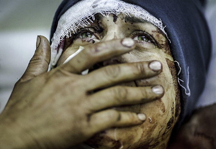 Aida, 32, reacts as she recovers from severe injuries. She has lost her husband and two children after the Syrian Army shelled her house in Idlib, north Syria