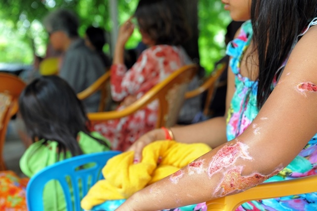 Acid burn survivors from across Cambodia gather at CASC for a support meeting in October 2011